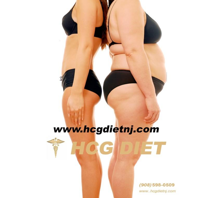 HCG Diet Special from MEDICAL WEIGHT LOSS